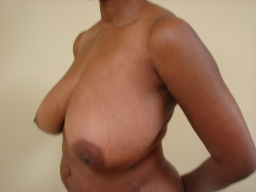 Breast Reduction 08 Patient Before
