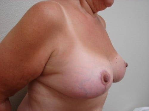Breast Reduction 09 Patient After