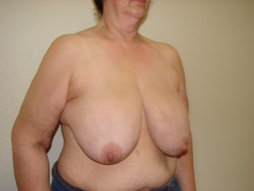 Breast Reduction 09 Patient Before