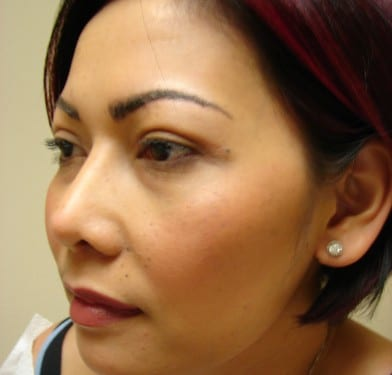 Blepharoplasty 01 Patient After