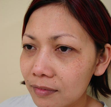 Blepharoplasty 01 Patient Before