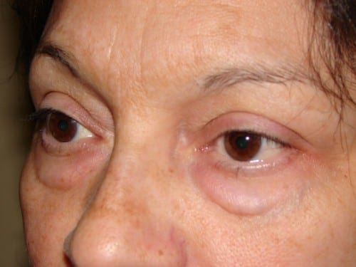 Blepharoplasty 11 Patient Before