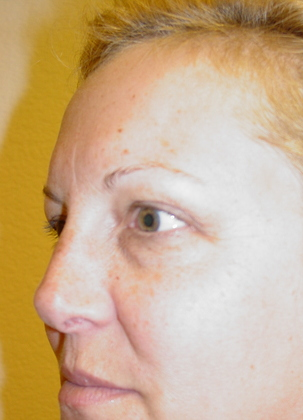 Blepharoplasty 12 Patient Before