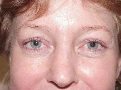 Blepharoplasty 02 Patient After