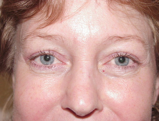 Eyelid Lift in San Francisco Patient After 2