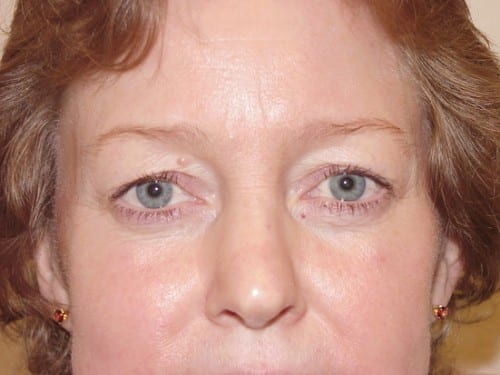 Blepharoplasty 02 Patient Before
