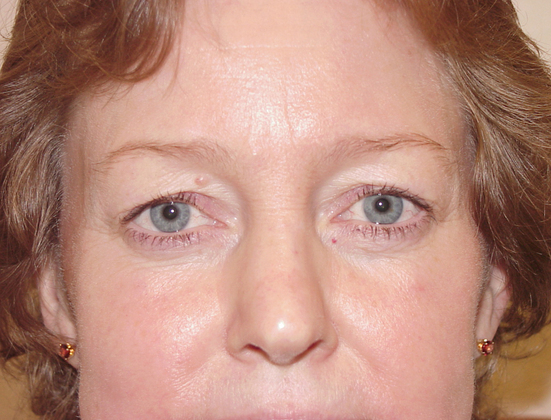 Eyelid Lift in San Francisco Patient Before 1