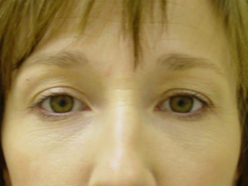 Blepharoplasty 03 Patient Before