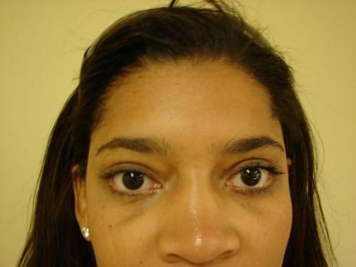 Blepharoplasty 06 Patient After