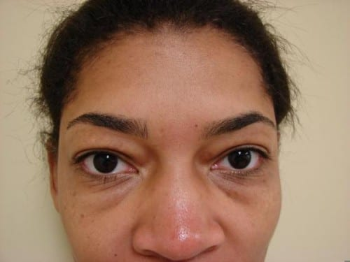 Blepharoplasty 06 Patient Before