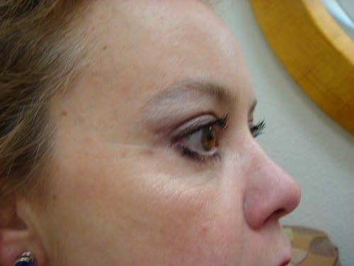 Blepharoplasty 08 Patient After
