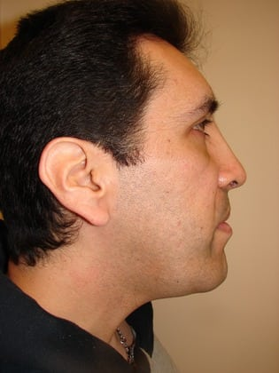 Facial Implants 05 Patient After
