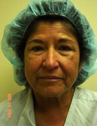 Facelift 12 Patient Before