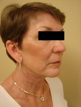 Facelift 02 Patient After