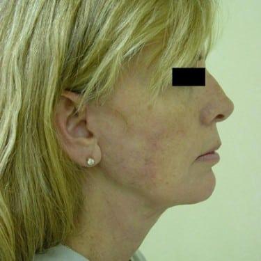 Facelift 04 Patient After