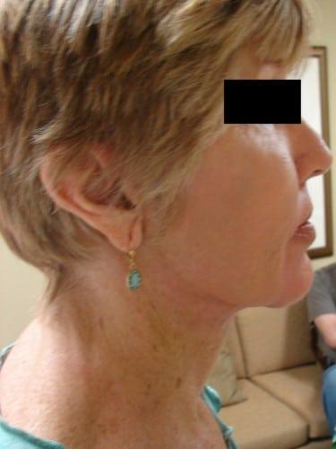 Facelift 06 Patient After
