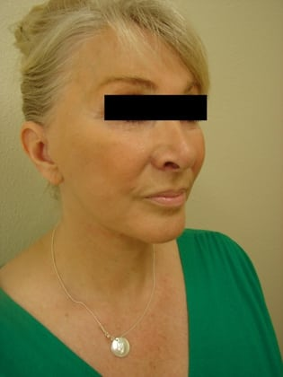 Facelift 01 Patient After