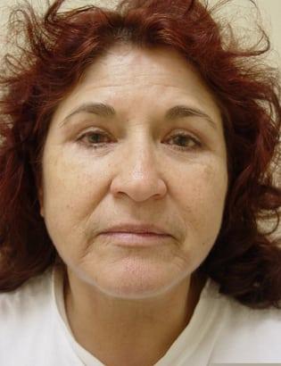 Facelift 12 Patient After