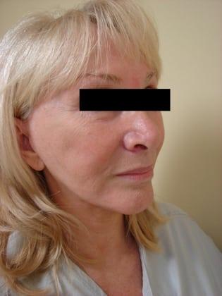 Facelift 01 Patient Before