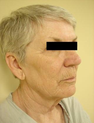 Facelift 02 Patient Before