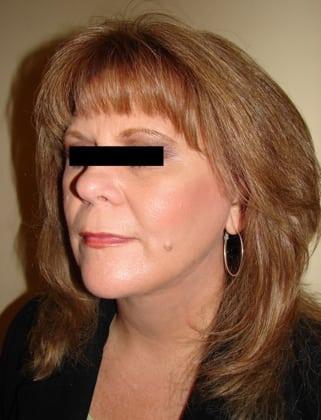 Facelift 03 Patient After