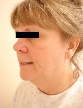 Facelift 03 Patient Before