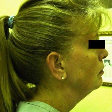 Facelift 04 Patient Before
