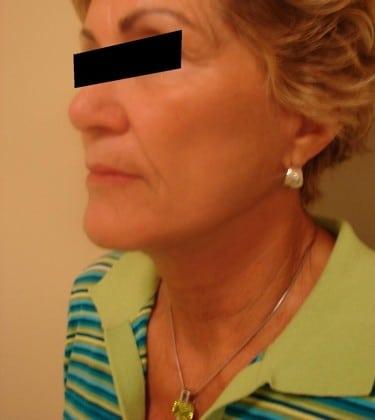 Facelift 05 Patient After