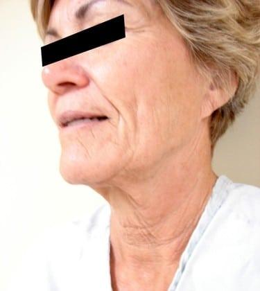 Facelift 05 Patient Before