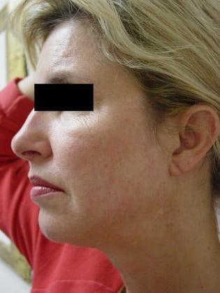 Facelift 08 Patient Before