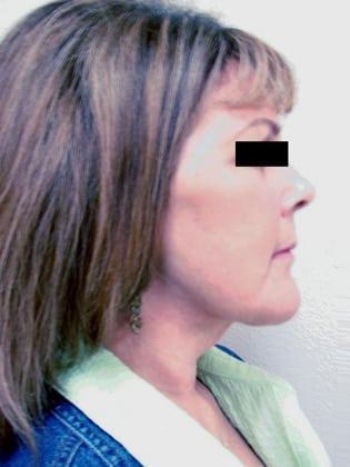 Facelift 09 Patient After