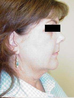 Facelift 09 Patient Before