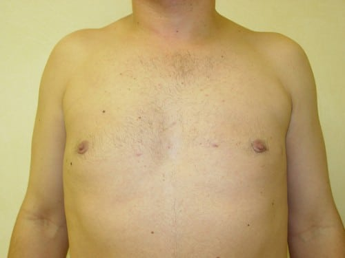 Gynecomastia 01 Patient After