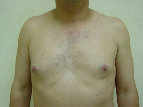 Gynecomastia 01 Patient Before