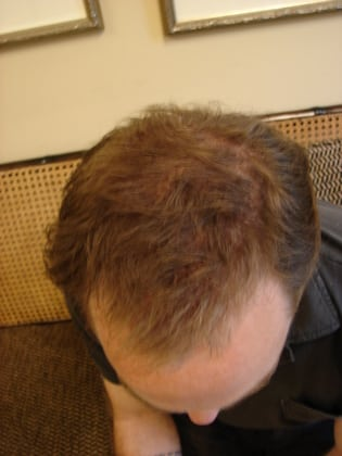 Hair Transplants 01 Patient After