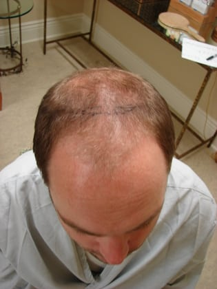 Hair Transplants 01 Patient Before