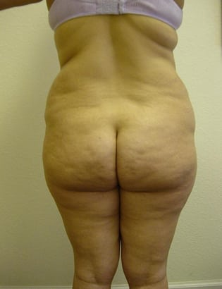 Liposuction 01 Patient Before
