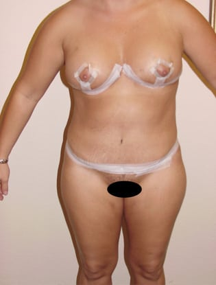 Liposuction 02 Patient After