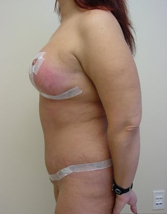 Liposuction 03 Patient After