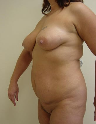 Liposuction 03 Patient Before
