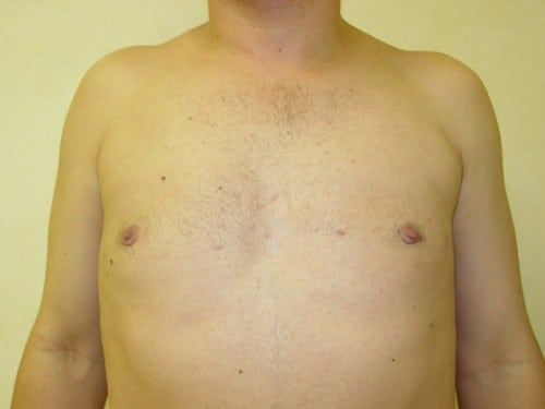 Liposuction 04 Patient After