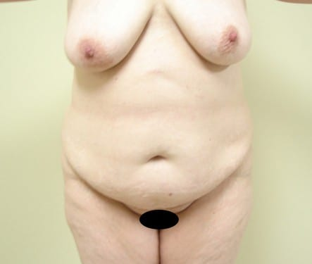 Liposuction 05 Patient Before