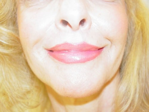 Lip Augmentation 02 Patient After