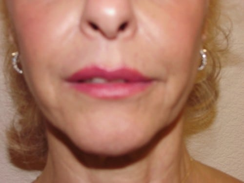 Lip Augmentation 02 Patient Before
