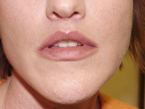 Lip Augmentation 03 Patient After