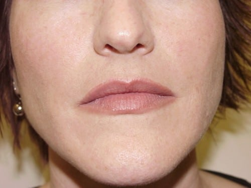 Lip Augmentation 03 Patient Before