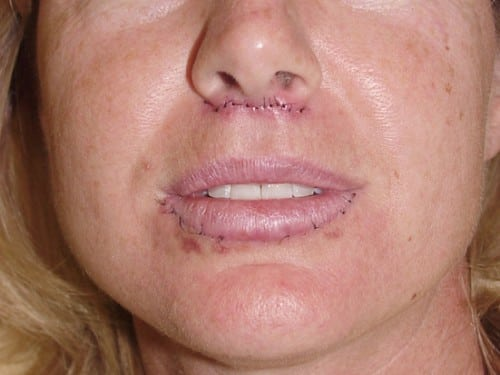 Lip Augmentation 05 Patient After