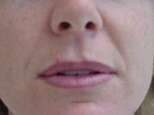 Lip Augmentation 05 Patient Before