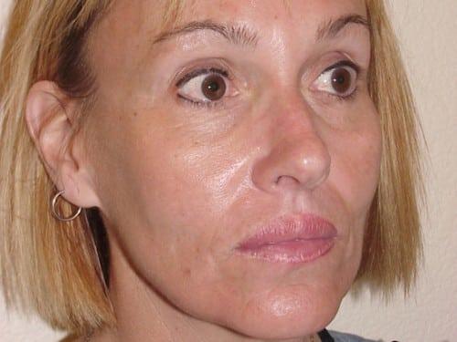 Lip Augmentation 06 Patient After