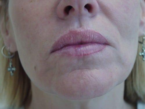 Lip Augmentation 07 Patient After